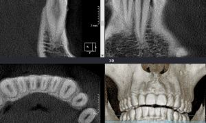 Снимок 3 д зубов