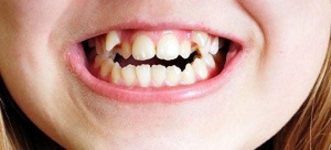 Порядок смены молочных зубов
