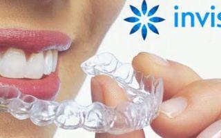Выпрямление зубов капами