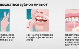 Какая зубная нить лучше вощеная и невощеная