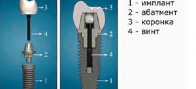 Коронка металлокерамическая на имплантате