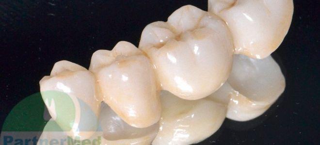 Шатается зубной мост что делать