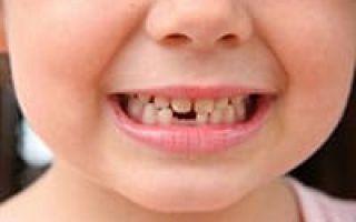 Сколько у человека зубов во рту