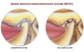 Болит ухо и челюсть с левой стороны