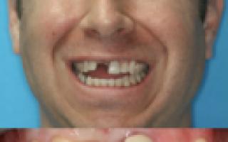 Что делать если выпал коренной зуб