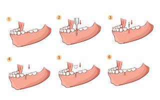 Имплантация зубов новые технологии
