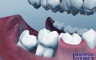 Сколько зубов мудрости может быть у человека