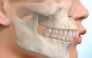 Керамические брекеты с белой дугой