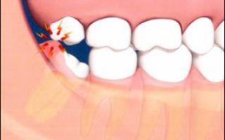 Болит зуб лечение