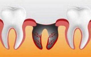 После лечения зуба поднялась температура у ребенка