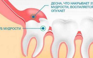 Как лезет зуб мудрости