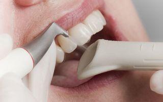 Как убирают зубной камень стоматологи