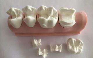 Виды вкладок в стоматологии