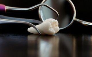 Как расшатать зуб