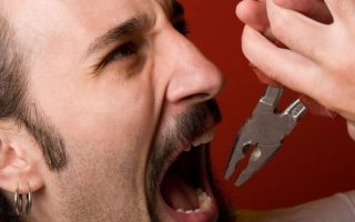 Что будет если удалить нерв из зуба