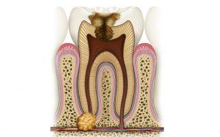 Гранулема зуба под коронкой