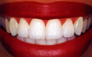 Лак для зубов отбеливающий