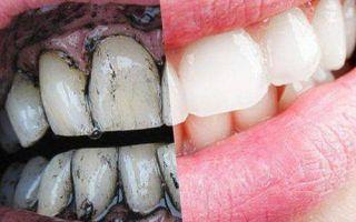 Как чистить зубы углем