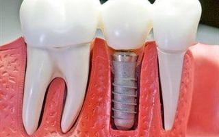 Лечение запущенных зубов