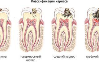 Как определить кариес на зубах