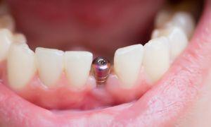 Где можно вставить зубы недорого