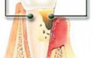Заболевание зубов пародонтит