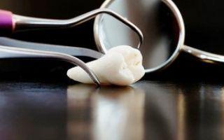 Зуб мудрости растет в соседний зуб