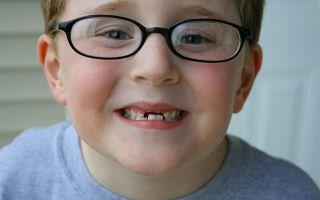 Стачивание зубов под коронки