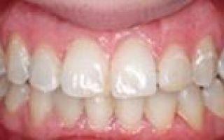 Реставрация зубов что это такое