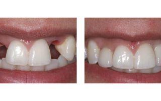Форма зубов при протезировании