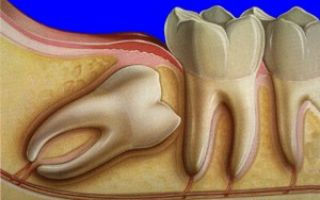 Зубы у человека