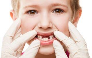 Как лечить гингивит у детей