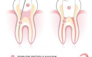 Положили лекарство в зуб болит