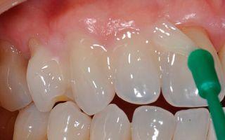 Болит зуб когда на него нажимаешь