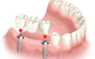 Может ли болеть зуб после установки штифта