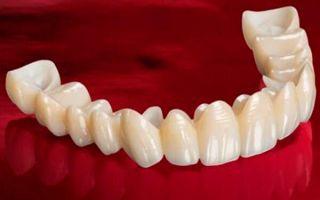 Мостовые протезы зубов