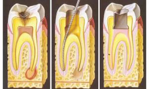 Гниет корень зуба симптомы