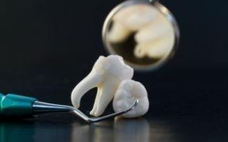 Больно ли удалять нижний зуб мудрости