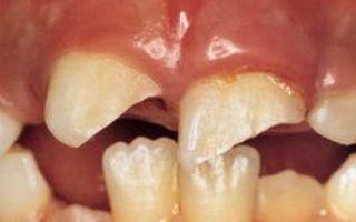 Откололась часть зуба что делать