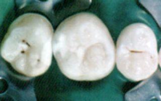 Вектор в стоматологии что это