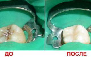 Как лечится кариес у стоматолога
