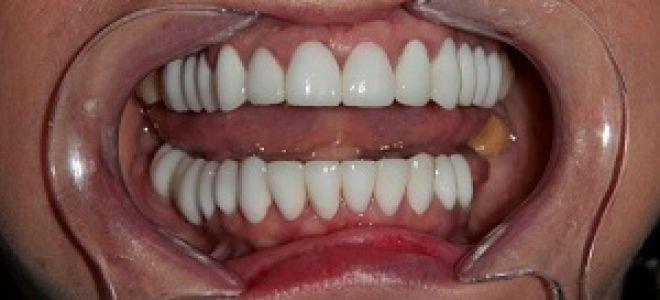 Какие коронки на зубы лучше ставить