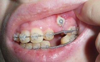 Ретинированный зуб что это