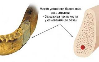 Базальные импланты