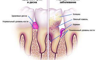 Симптомы пародонтоза у взрослых