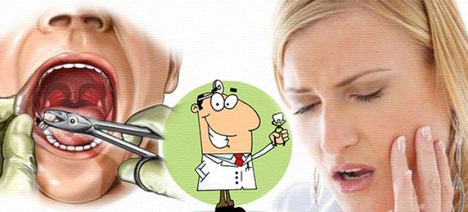 Зуб мудрости и головная боль