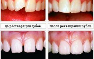Скол переднего зуба лечение