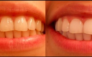 Как чистить зубы активированным углем