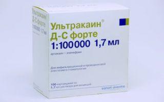 Анестезия ультракаин