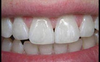 Мостовидный протез без обточки зубов